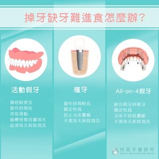 【植牙】老人家掉牙缺牙難進食?