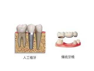 固定式假牙(牙橋)vs. 植牙