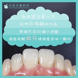 【全瓷冠】猜猜看哪顆牙齒是假的?
