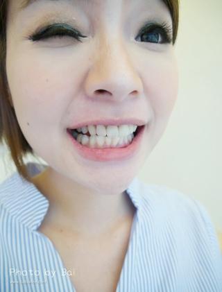 【全瓷冠】部落客蓓蓓來悅庭牙醫4小時搞定2顆全瓷冠2顆美白貼片