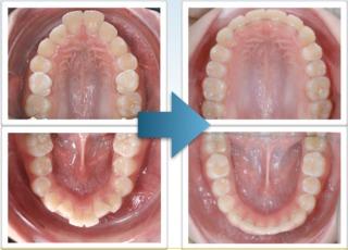 矯正推薦Damon戴蒙矯正器-迷你舒適型矯正器,解決亂牙的專家