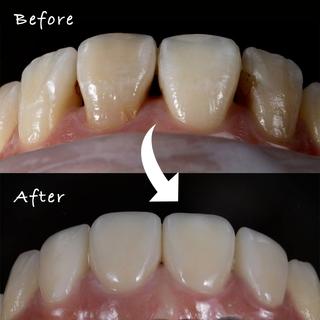 【瓷牙貼片/美白貼片】門牙全瓷冠、瓷牙貼片案例分享1