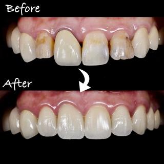 【全瓷冠/全瓷牙冠】當天就用全瓷冠讓牙齒變美齒-案例分享4