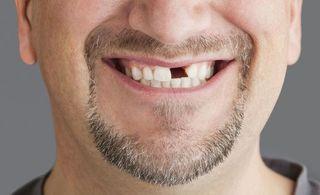 植牙好嗎? 缺牙要植牙還是做假牙? 植牙權威-世樺牙醫師告訴你治療缺牙的3種方式!