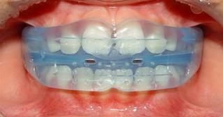 睡夢中牙齒即可矯正牙齒-MRC孩童矯正系統