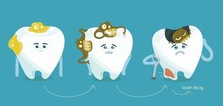 蛀牙好痛!為什麼會蛀牙?河堤小鹿牙醫診所告訴你。